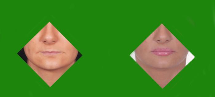 1-chirurgiczne-powiekszanie-ust